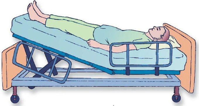 Posicion Trendelenburg - Imagen Diagnóstica y Enfermería : Imagen ...